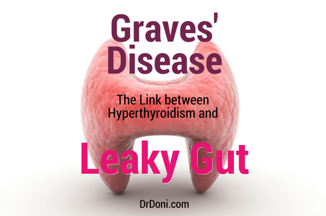 Graves' Disease  The Link Between Thyroid And Leaky Gut. Rate Signs. Building Site Signs. More Or Less Signs. Developmental Milestone Signs. Idiopathic Pulmonary Signs. Oxygen Saturation Signs. Triple Signs Of Stroke. Overhead Signs Of Stroke